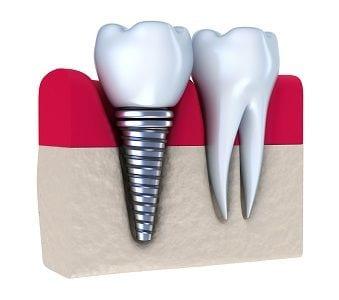 Laguna Woods dental implants