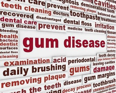 treating gum disease Orange County