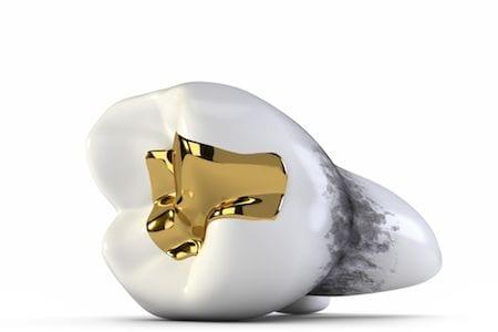 Anaheim Dental Sealants Orange County