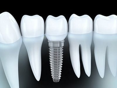 Anaheim Implants Fullerton