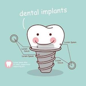 Dental Implant History