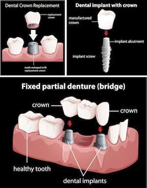 Laguna Woods Dental Crowns Orange County