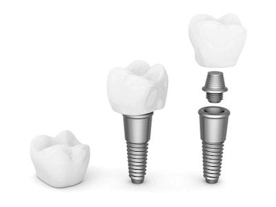 Laguna Woods Dental Implants Orange County