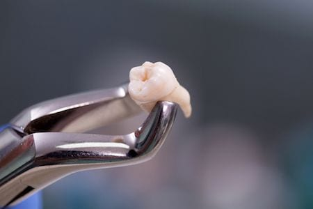 Anaheim Wisdom Tooth Extractions