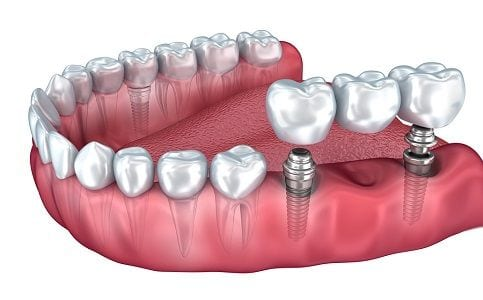 Anaheim Dental Implants Orange County