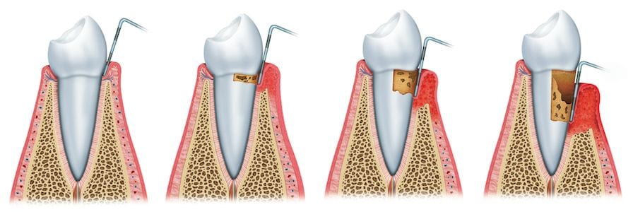 Periodontics Orange County