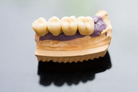 Prosthodontics Orange County
