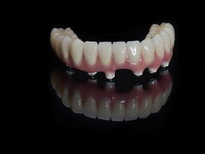 Best Orange County All On 4 Dental Implants