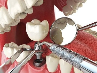 Anaheim Dental Implants