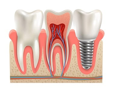 Orange County Multiple Tooth Replacement