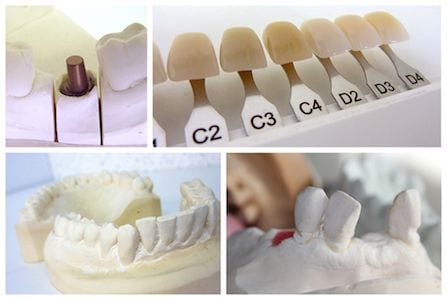 Anaheim Cosmetic Dentistry