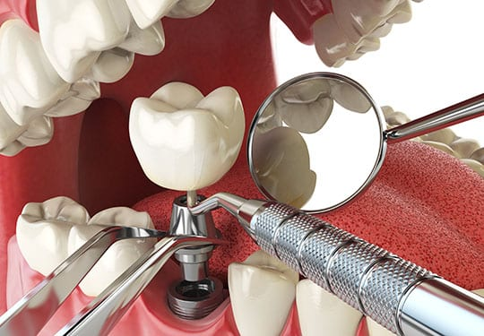 Dental Implant Service Orange County