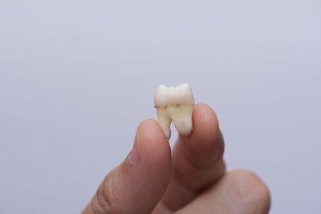 Anaheim Tooth Extraction Garden Grove